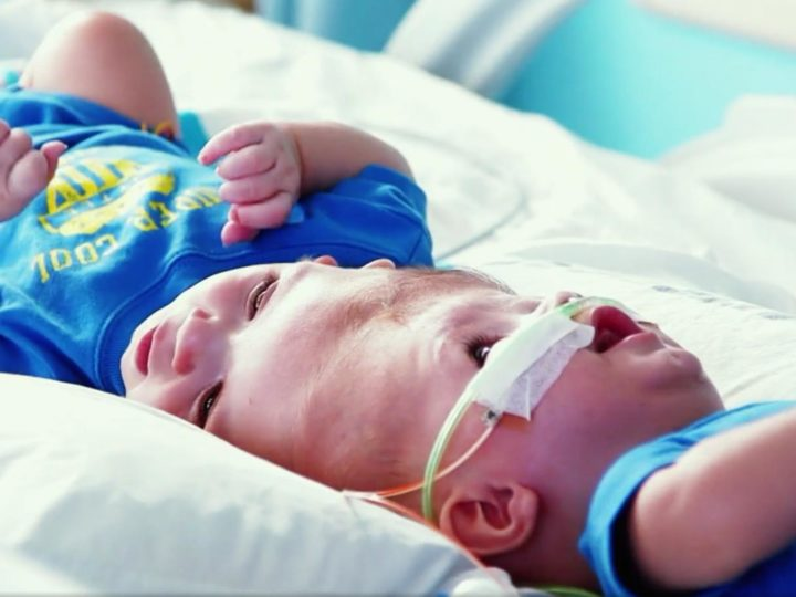 Surgeon and Medical Team Perform Loving Surgery on Conjoined Twins